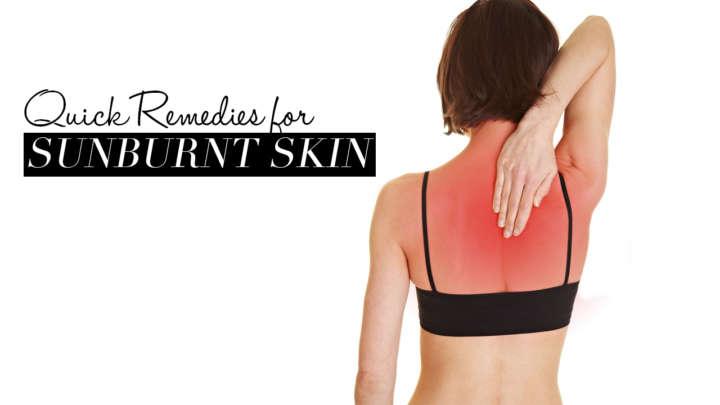 remedies-sunburn