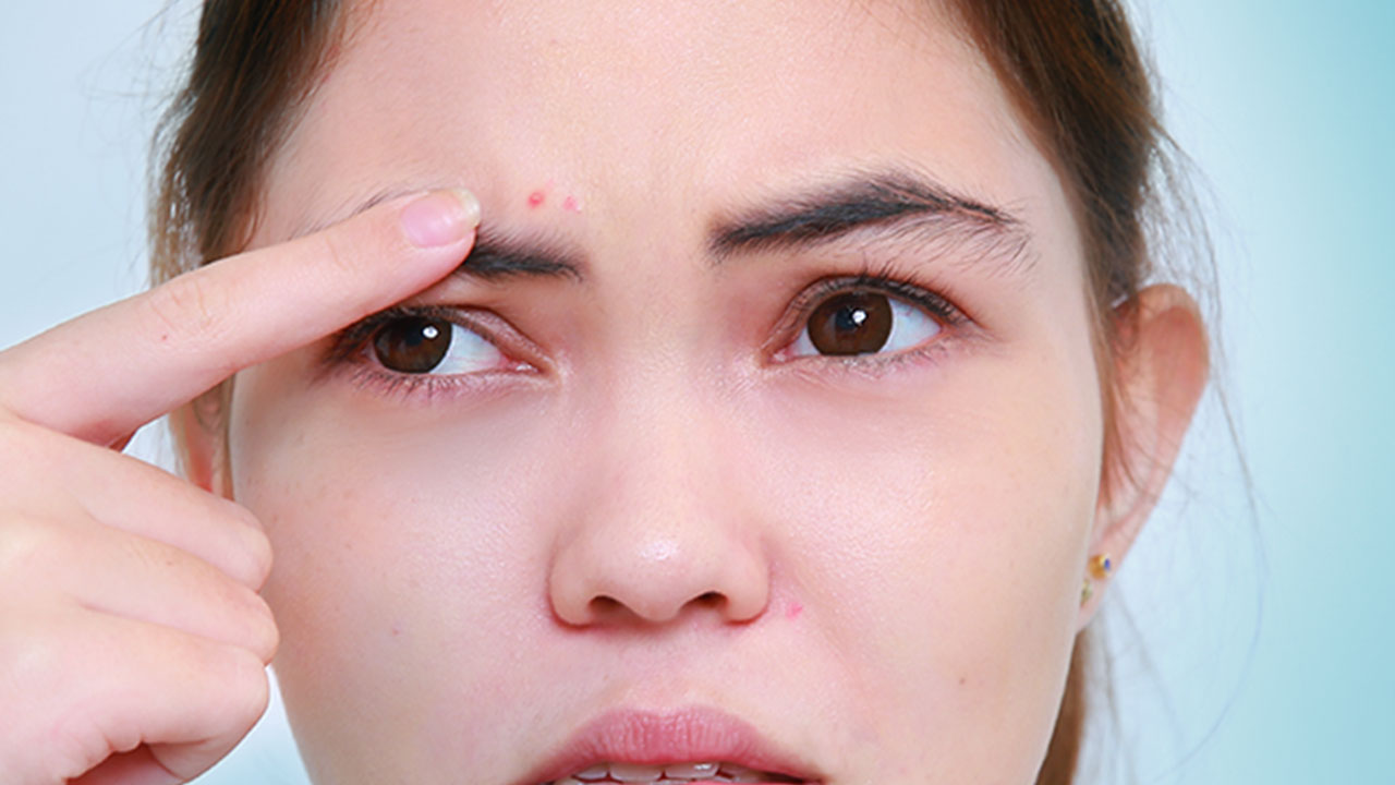 Acne Danger Zones: Face Mapping Your Zits - Calyxta on zit mapping, atrial fibrillation mapping, skin mapping, botox mapping, anxiety mapping, anthrax mapping,